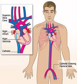 Electro physiology study